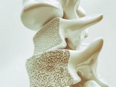 让人失能的无声杀手进逼 全球每3秒就1人因骨质疏鬆症骨折